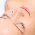 Acupoints to relieve head and sinus pain.